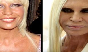 Celebryci przed i po operacji plastycznej