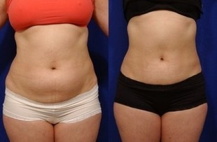Odchudzające okłady na noc - tłuszcz sam znika!