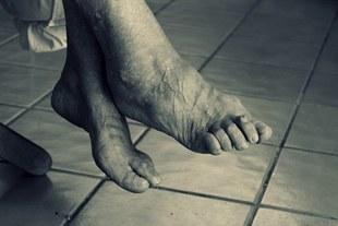 Jesteś 50 plus? Menopauza niszczy stopy!