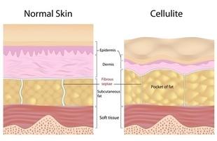 Jak zwalczyć cellulit? Poznaj sposoby i skuteczny krem na cellulit!