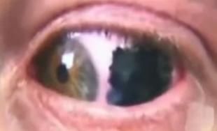 Tatuaże w oku