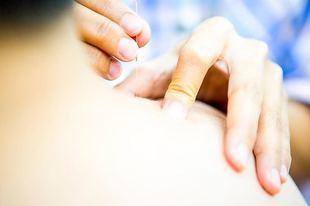 Akupunktura - fakty i mity