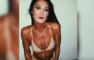 26-letnia modelka z dumą pokazuje swoje zmarszczki