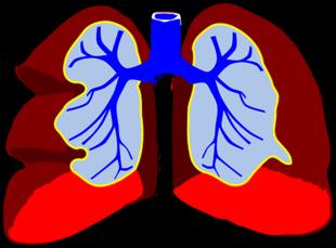 Stosowanie steroidów związane z obecnością grzyba w płucach