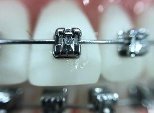 7 mitów związanych z leczeniem ortodontycznym