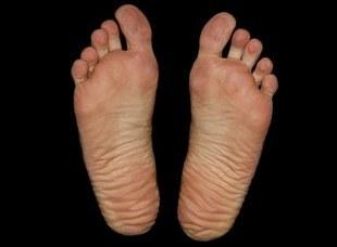 Jak dbać o stopy w każdym wieku?