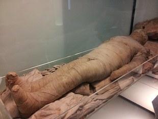 Mumie i miażdżyca. Choroba stara jak świat?