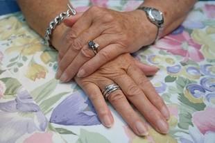 Twoje dłonie zdradzają twój wiek!