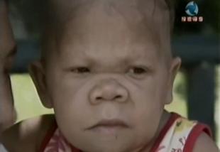 Ma ponad 30 lat, wygląda jak niemowlę