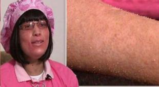 Tajemnicza choroba - paznokcie rosnące ze skóry