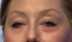 Zlikwiduj zmarszczki i worki pod oczami bez botoxu!