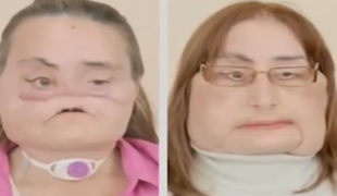 Pierwsza kobieta na świecie z przeszczepioną twarzą