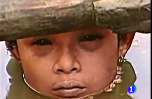Omaira umierała na oczach świata