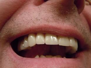 Nie tylko wybiela zęby, ale likwiduje śmierdzący oddech