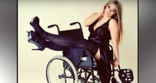 Niepełnosprawna modelka plus-size pokazuje inne oblicze piękna