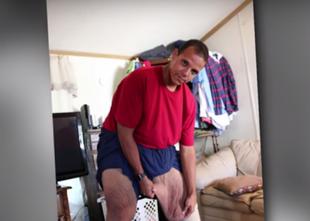 Internet pomógł mu schudnąć, teraz zbiera na operację