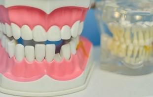 Brzydkie zęby postarzają o 13 lat!