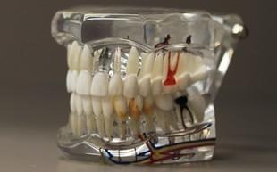 Czy wiecie, że nieleczone zęby mogą być przyczyną zawału!