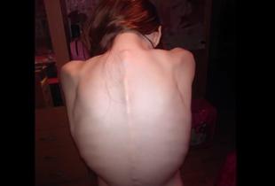 Kiedy twoja córka ma anoreksję