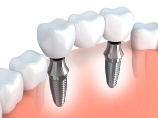 Wszystko na temat implantów stomatologicznych