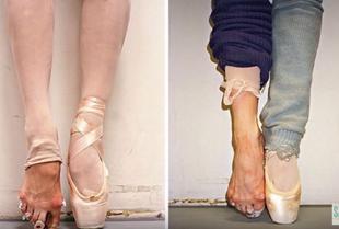 Ile kosztuje piękno baletu?