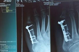 Menopauza i kruche kości