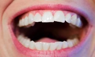 Krzywe zęby? Dziś nie musisz już nosić szpecących aparatów!