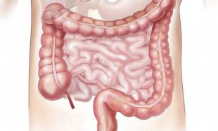 Bakterie jelitowe - mamy ich około 2 kilogramów. Bez nich nie moglibyśmy przeżyć...