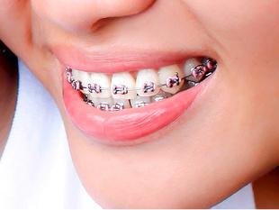 Aparaty ortodontyczne dla dorosłych – jak wybrać właściwy?