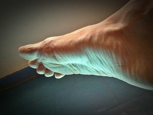 Jak radzić sobie z bolącymi stopami?