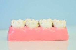 7 popularnych porad, które mogą zniszczyć twoje zęby