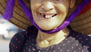 Efekt Godona, czyli jak może zaszkodzić brak zęba