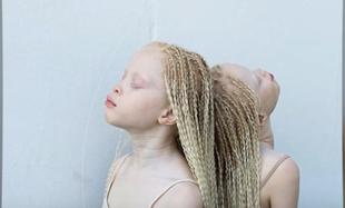 Bliźniaczki - albinoski z Brazylii podbiły świat mody
