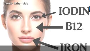 5 oznak braku witamin, które znajdziesz na swojej twarzy