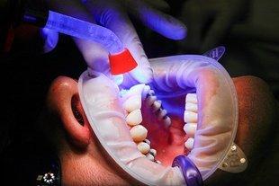 Jak dbać o zęby po 40-stce? Ryzyko niektórych schorzeń wzrasta