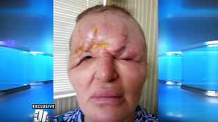 Carol Bryan - pogoń za urodą zniszczyła jej życie