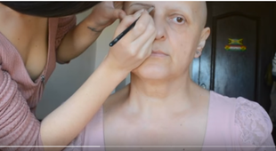 Przemiana pacjentki po chemioterapii