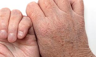 3 poważne choroby, których objawem może być sucha skóra