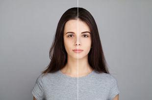 Problemy ze skórą a nadwaga