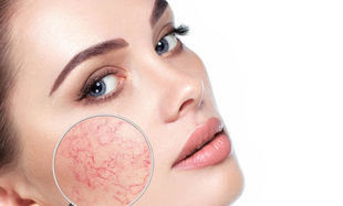 Jak dbać o skórę naczynkową?