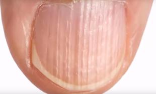 Co oznaczają bruzdy na paznokciu?