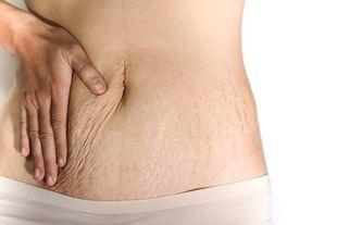 Jak ujędrnić skórę po ciąży?