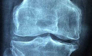 Osteoporoza to zaniedbany problem, który dotyczy ok. 3 mln Polaków