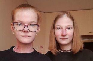 Życie bez skóry - siostry nie znają dnia bez cierpienia