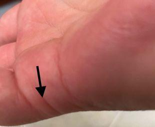 Linia związków - gdzie ją znaleźć na dłoni i co o nas mówi?