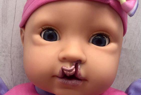 Lalka z rozszczepem, zdjęcie Facebook BrightEars