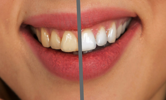 W pogodni za amerykańskim uśmiechem - zęby wczoraj i dziś