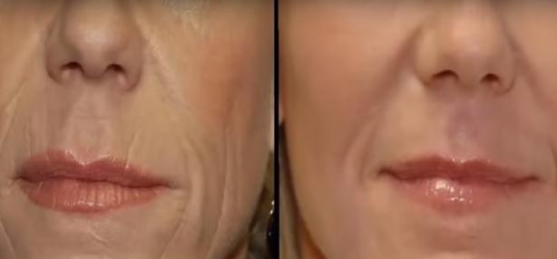Jak pozbyć się zmarszczek wokół ust?
