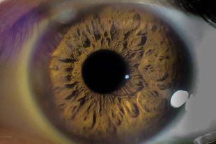 Zaćma – nie lekceważ tej choroby oczu!