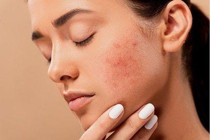Domowy sposób na podrażnioną przez maseczkę skórę twarzy